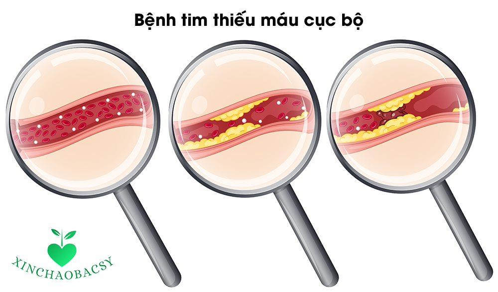 Bệnh tim thiếu máu cục bộ – Bệnh nguy hiểm không thể chủ quan!
